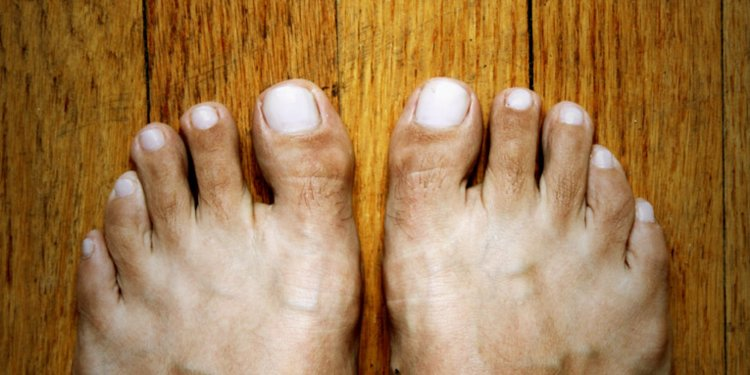 What does brown toenails mean