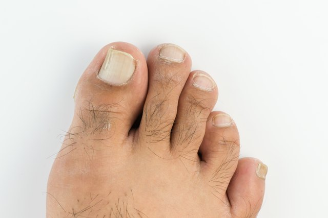 Dry cracked toenails treatment
