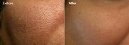 Правильно ухаживая за кожей с расширенными порами, можно значительно уменьшить их визуально