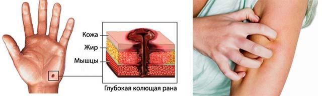 Повреждение стенок сосудов при травме