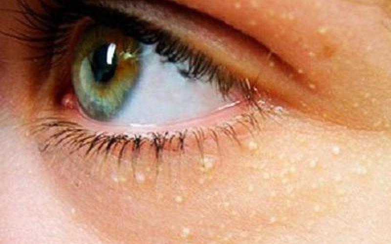 Белые точки на мешках под глазами