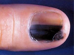 Black marks on fingernails