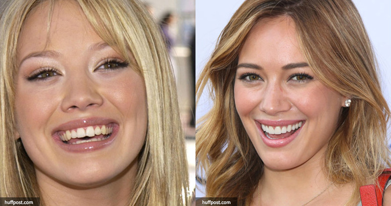 Hilary duff before and after weight