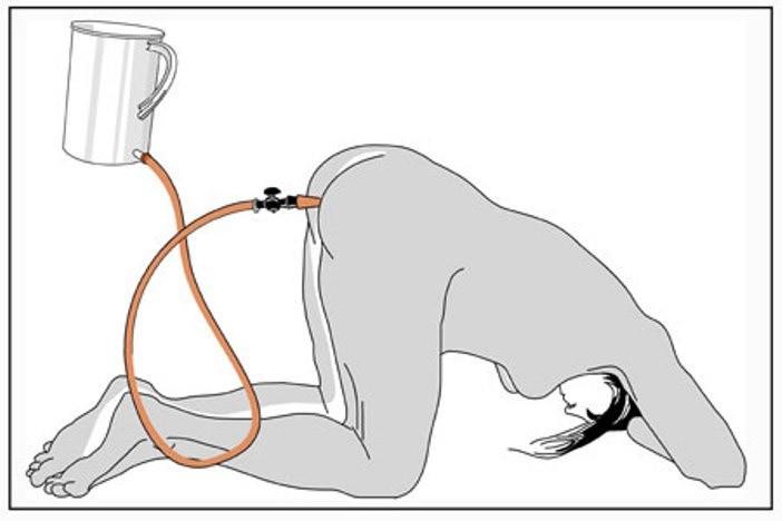Как правильно очищать кишечник клизмой