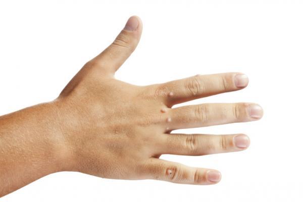 Как бороться с бородавками на руках