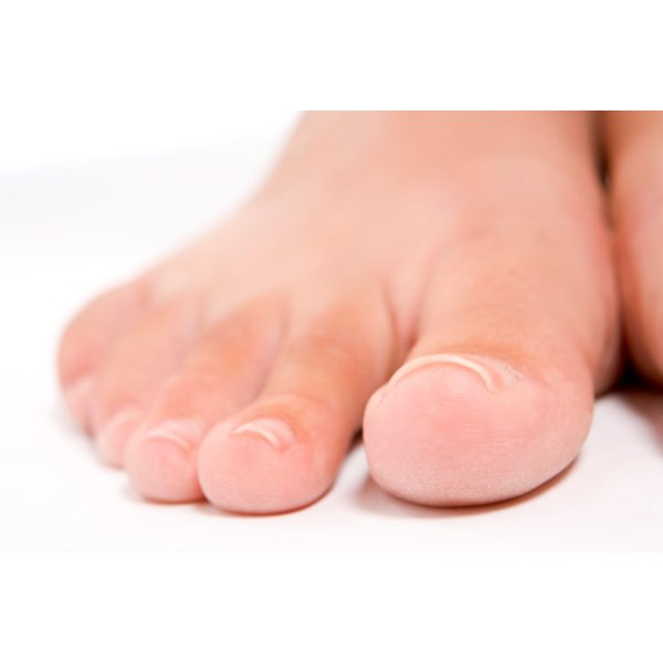 How to correct curved toenails