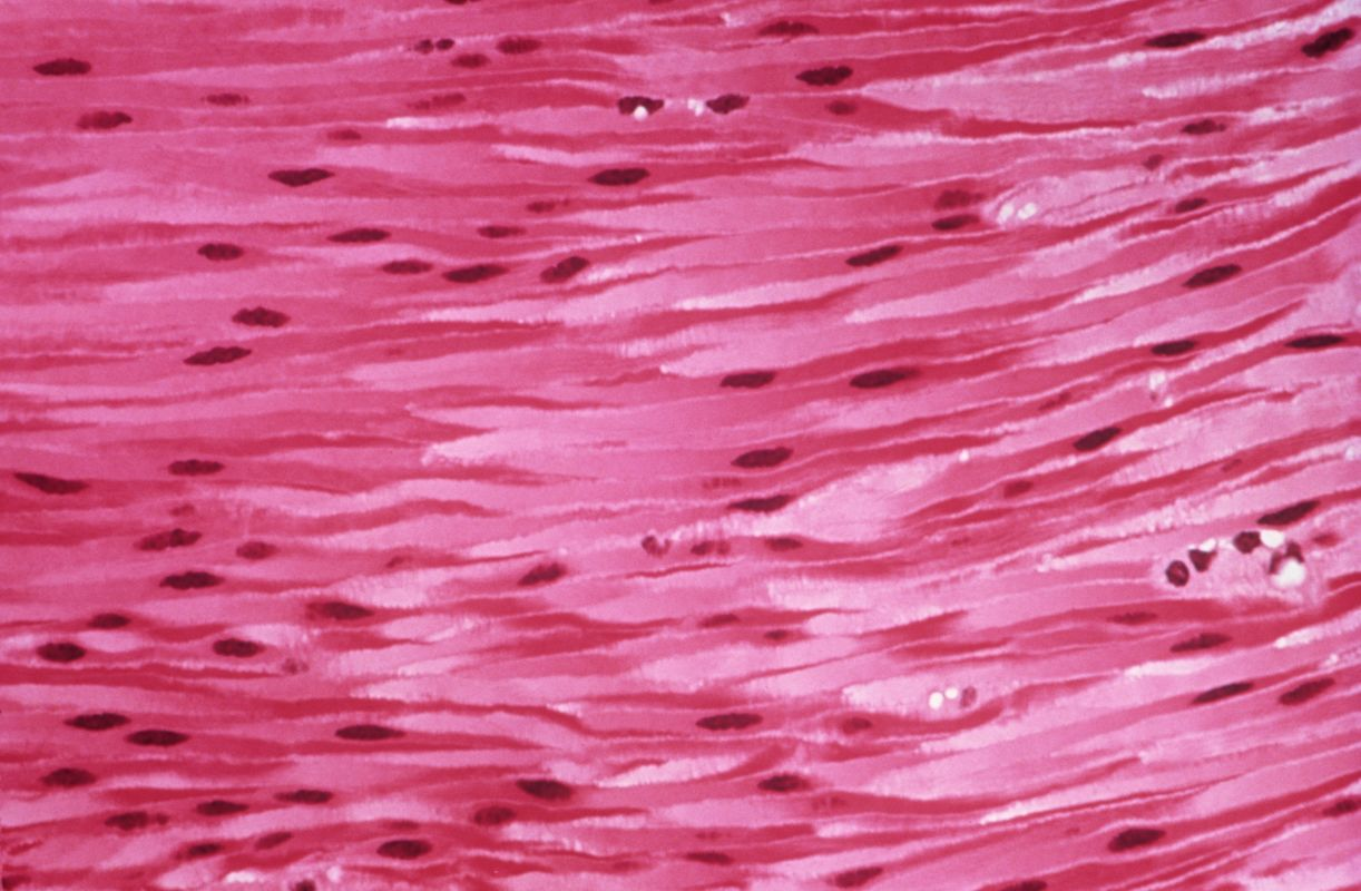 Muscle Cells Ms Jungs Biology World