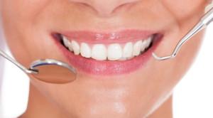 ขูดหินปูนขจัดคราบบนผิวฟัน