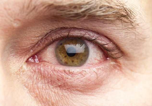 penyebab mata merah - Alodokter