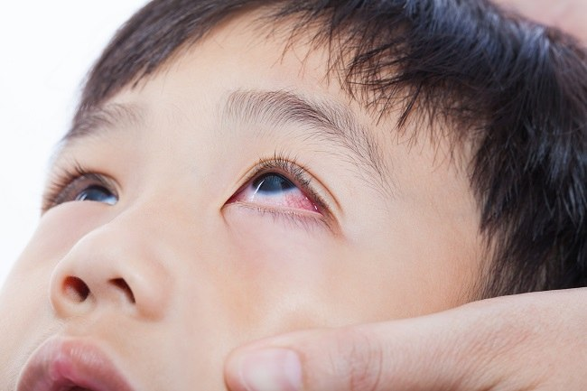 keluhan mata gatal akibat alergi - alodokter