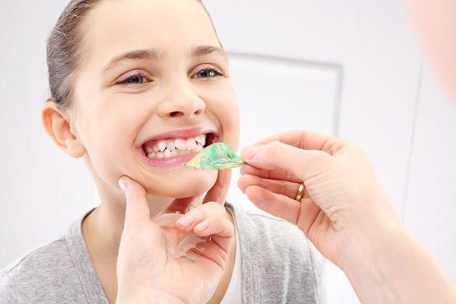 gigi gingsul dipertahankan atau disingkirkan - alodokter