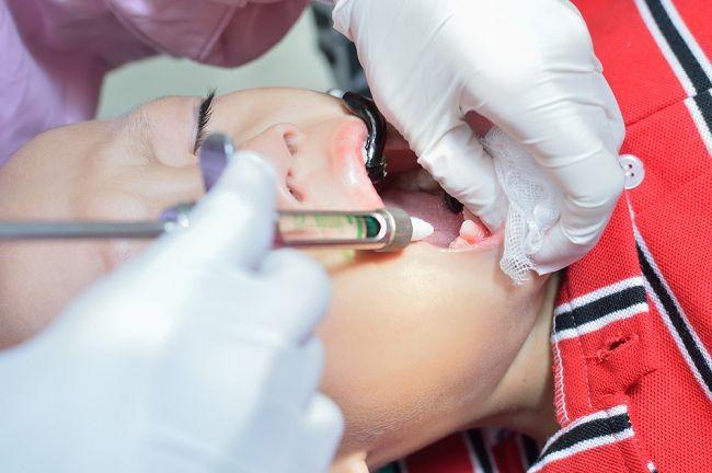 cabut gigi harus punya alasan tepat   alodokter