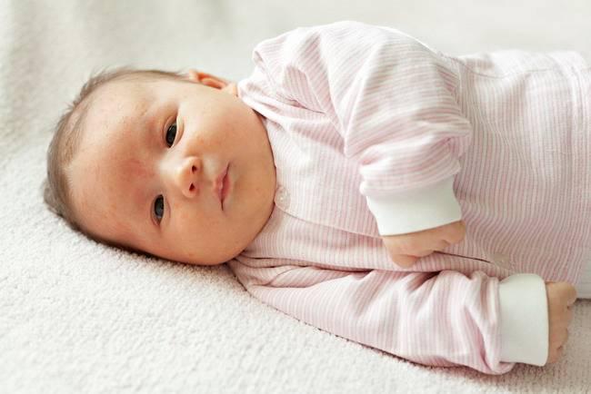 biang keringat pada bayi-alodokter