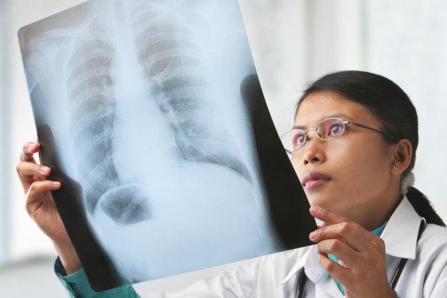 membedakan kedua jenis tumor paru jinak dan ganas - alodokter