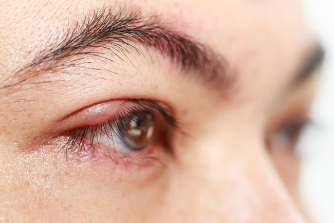 cari tahu penyebab dasar mata bengkak sebelum mulai diobati - alodokter