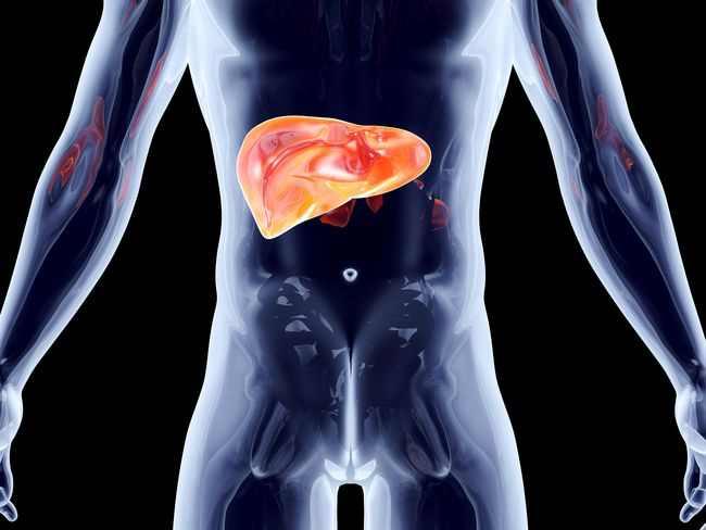 alodokter-hepatitis-a