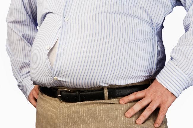 Obesitas-alodokter