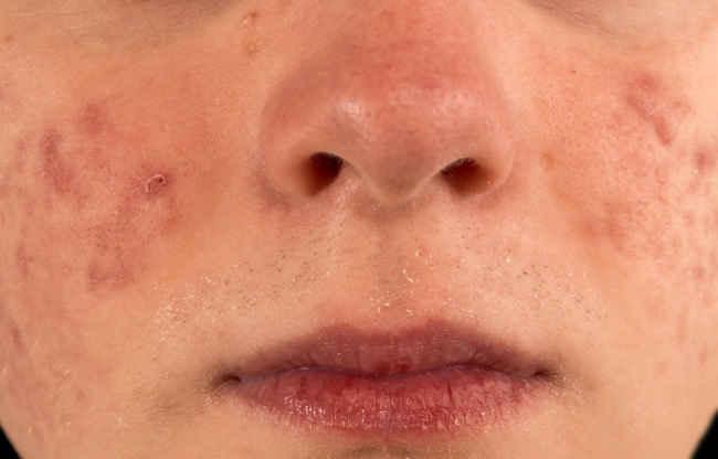 lakukan penanganan bisul di wajah hingga tuntas agar tidak menyebar - alodokter