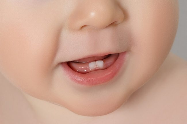 Ayah dan Bunda Ini yang Diperlukan Bayi saat Tumbuh Gigi - Alodokter