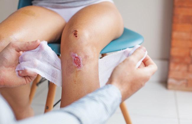 anda sedang mengalami luka lama sembuh mungkin ini penyebabnya – alodokter