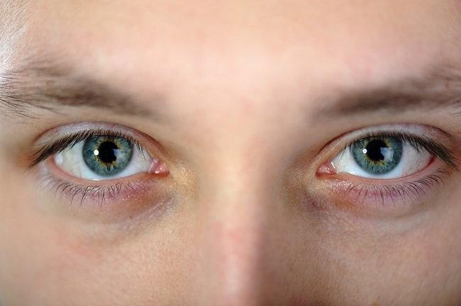 Sindrom Horner - alodokter