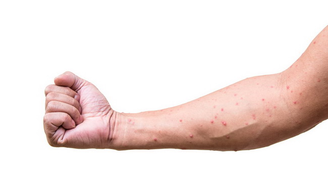 a man who having varicella blister or chickenpox