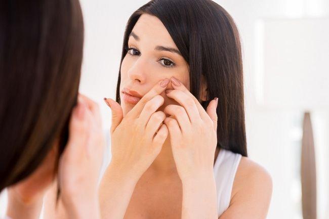 acne pus