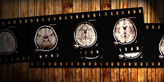 brain infection - alodokter