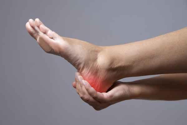 ปวดส้นเท้า