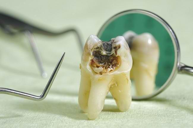 Hasil gambar untuk karies gigi