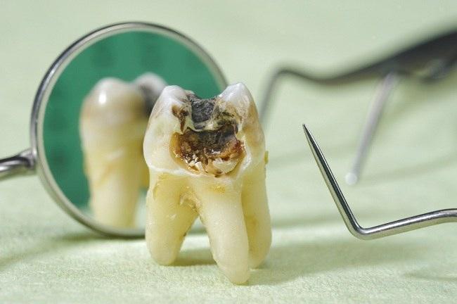 Sakit Gigi Berlubang Ini Penanganannya - alodokter