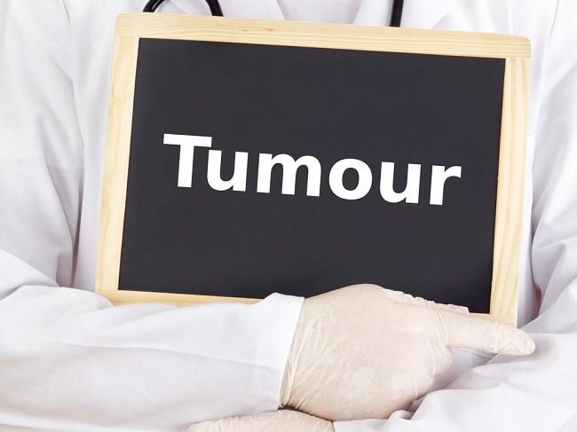 tumor medicine - alodokter