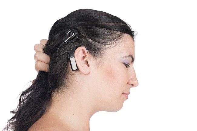 Mengenal Implan Koklea untuk Mendengar Lebih Baik - alodokter