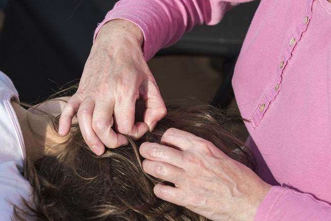 Katakan Selamat Tinggal pada Bahaya Kutu Rambut - alodokter