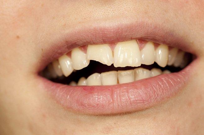 Gigi Patah Masih Berguna Jangan Dibuang - alodokter