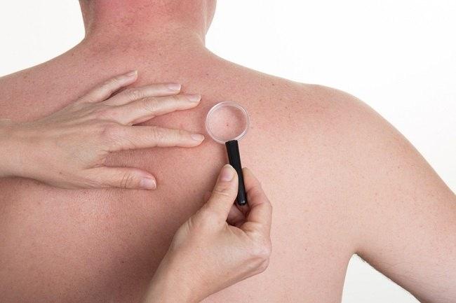 penyebab benjolan di punggung dan cara mengatasinya - alodokter