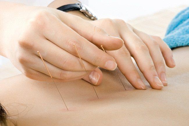 4 Metode Pengobatan Alternatif yang Aman Dilakukan saat Hamil