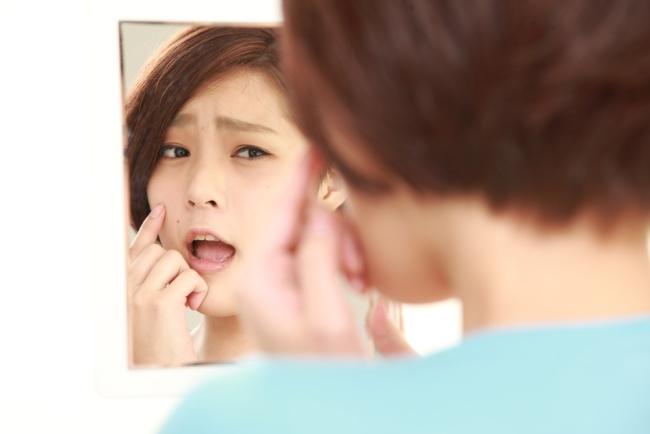 5 penyakit kulit yang umum diderita orang dewasa - alodokter