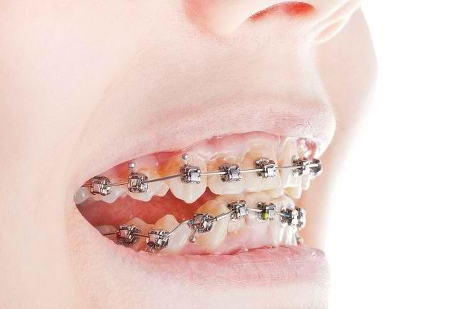 gigi tonggos - alodokter