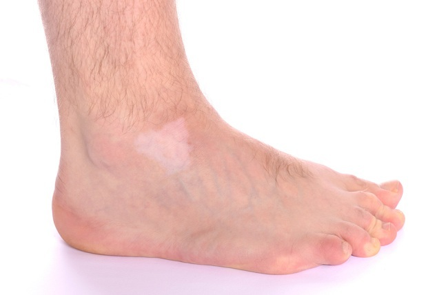 kelainan pigmen sebabkan kulit berubah warna - alodokter