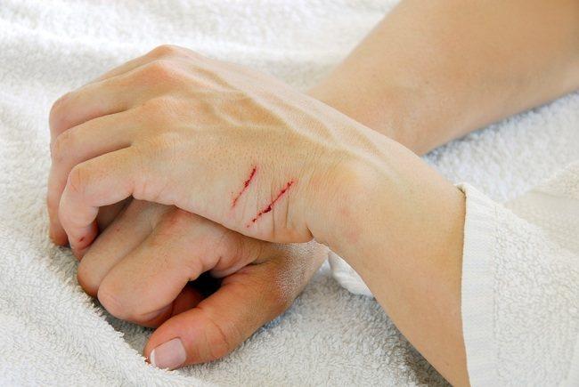 ragam cara menghilangkan bekas luka membandel - alodokter