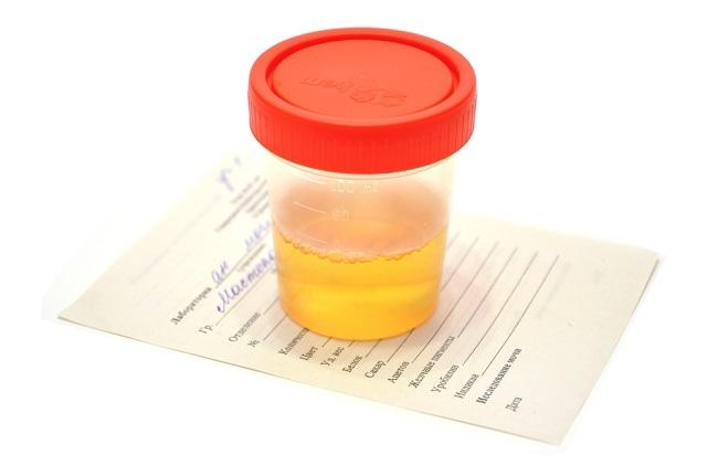 bagi yang ingin tahu soal terapi urine baca di sini - alodokter