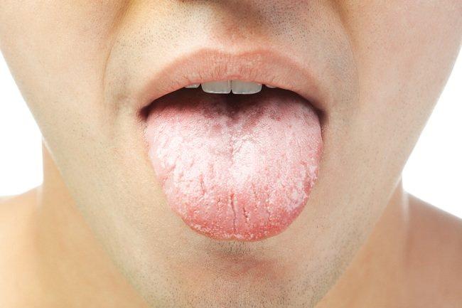 Cara mengobati sariawan di lidah - alodokter