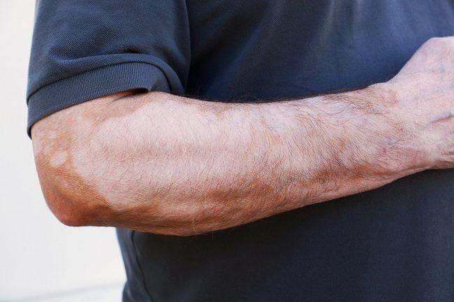 penyebab kulit belang dan cara menyiasatinya - alodokter