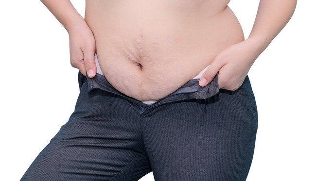 Kelebihan Berat Badan