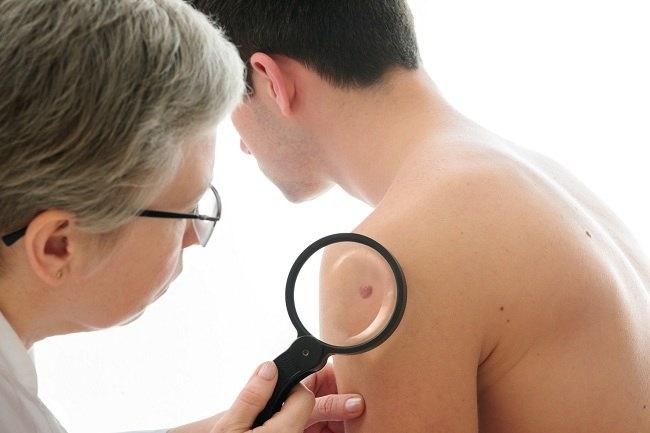 Deretan penyakit yang ditangani dokter kulit - alodokter