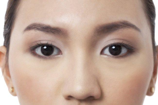 Memperbaiki Penampilan Melalui Operasi Hidung, Alodokter