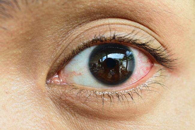 contagious eye disease - alodokter