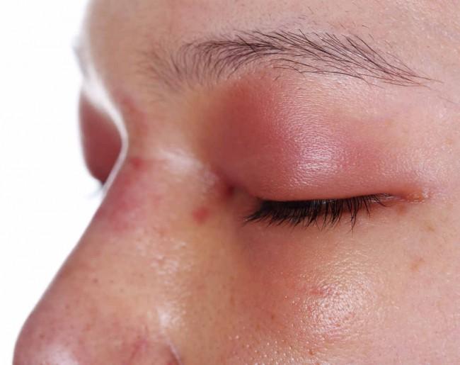 Penyakit Chagas - Alodokter