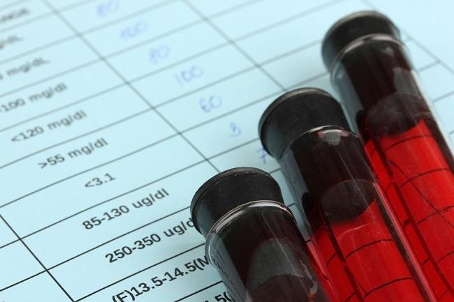 limfosit tinggi - alodokter